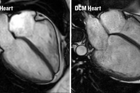 kardiologoi-peiraia Μυοκαρδιοπάθειες (3)