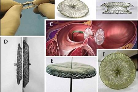 kardiologoi-peiraia - asd closure