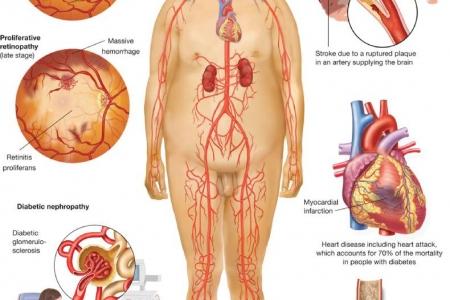 kardiologoi-peiraia - Μεταβολικό σύνδρομο