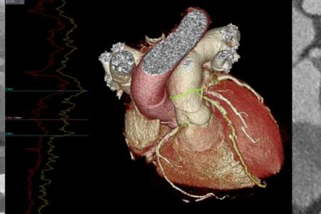 kardiologoi-peiraia - CCTA (1)