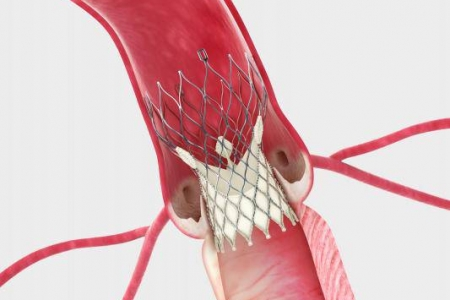 kardiologoi-peiraia - TAVI (1)