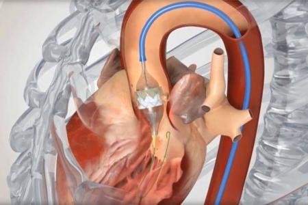 kardiologoi-peiraia - TAVI (2)