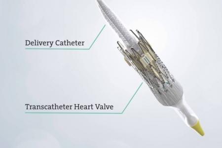 kardiologoi-peiraia - TAVI (5)