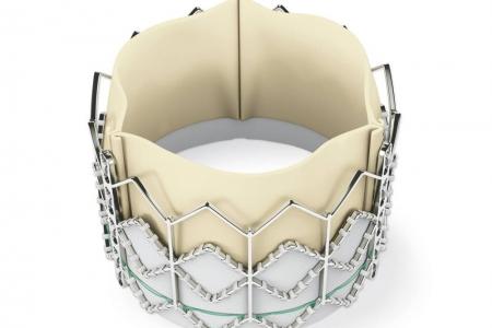 kardiologoi-peiraia - TAVI (6)