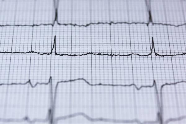 kardiologoi-peiraia - Ηλεκτροκαρδιογράφημα (καρδιογράφημα)